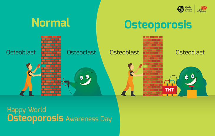 Let's Prevent Osteoporosis