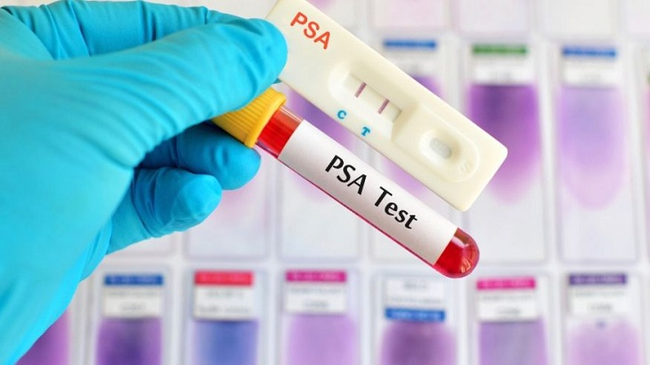 PSA Test for Early Detection of Prostate Cancer