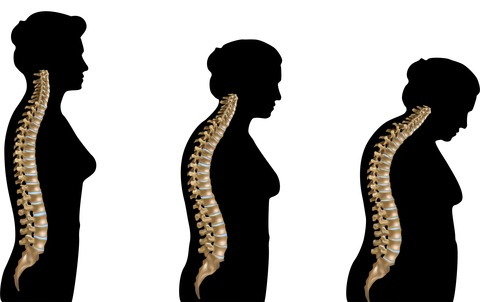 Assessing the Risk of Osteoporosis at the Earlier