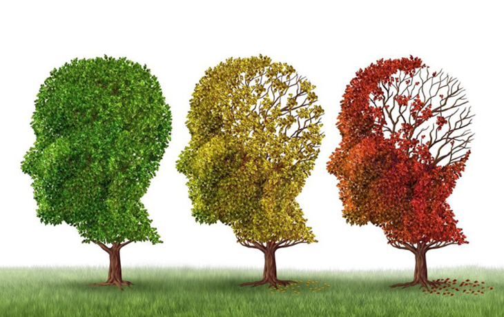 5 Stages of Dementia